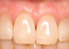 NYC patient's mouth after gum grafting