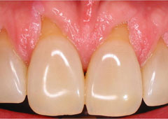 NYC patient's mouth before gum grafting