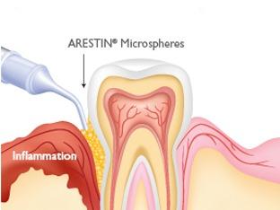 ARESTIN Local Antibiotic for Gums