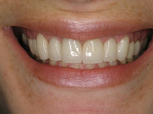 Cosmetic Crown Lengthening - After