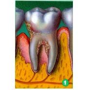 Guided Gum Tissue Regeneration NYC