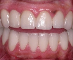 Long Island Patient before laser treatment for dark spots on gums