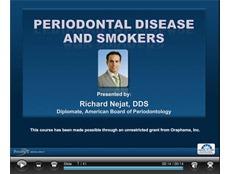 Periodontal Disease and Smokers Webinar