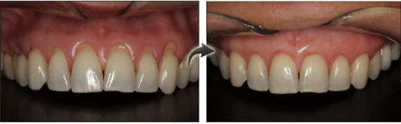 New York City patient before and after gum grafting