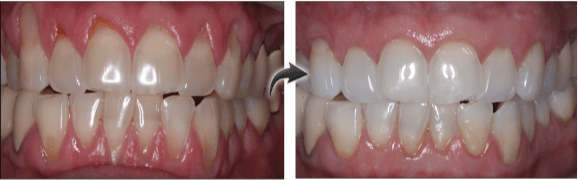 Long Island patient before and after gum grafting