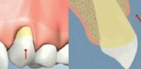 Illustration of Mouth before Gum Grafting in NYC