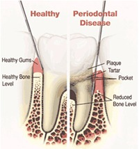 Signs & Symptoms of Periodontal Disease