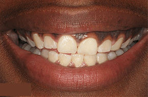 Patient before laser treatment for dark spots on gums in NYC