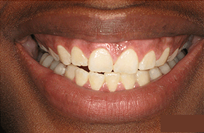 NYC Patient before laser treatment for dark spots on gums
