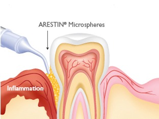 ARESTIN Local Antibiotic for Gums
