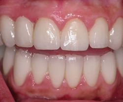 Patient before laser treatment for dark spots on gums in Long Island