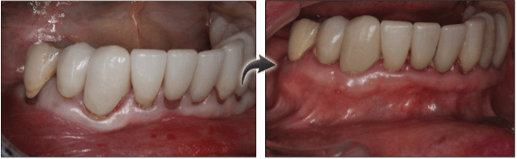 New Jersey patient before and after gum grafting